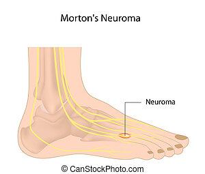 Morton%u2019s Neuroma, Eps10