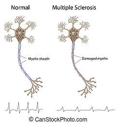Multiple Sklerose, Eps8