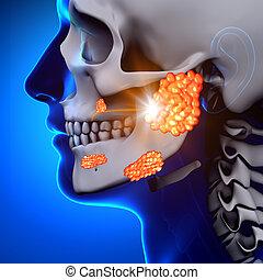 Mumps / parotid Drüsen - Krankheit.
