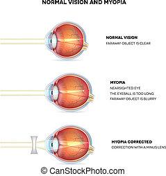 Myopia und normale Vision. Myopia wird kurzsichtig.