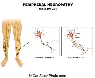 Neuropathie, Nervenschaden