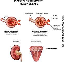niere, nephropathy, zuckerkrank, krankheit