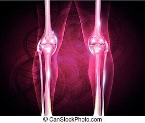 Osteoarthritis, schmerzhafter Joint.