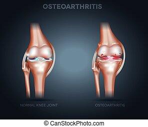 Osteoarthritis und normale Gelenkanatomie.