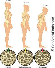 Osteoporose 3