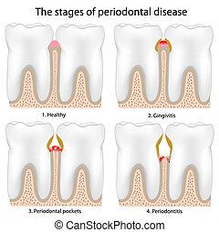 periodontal krankheit