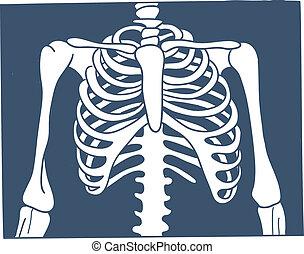 picture., thorax, röntgenaufnahme