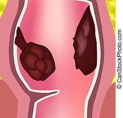 polypen, intestine., arten, infographics., rectum., rektum, struktur, colon., vektor, abbildung, hintergrund., freigestellt