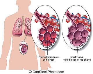 Pulmonäres Emphysem.