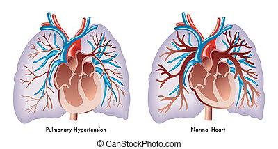 Pulmonale Hypertonie.