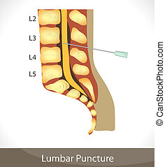 puncture., lumbal