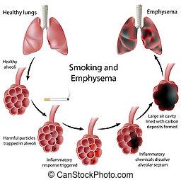 qualmende , emphysem, eps8