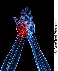 Röntgen-Hände - Arthritis