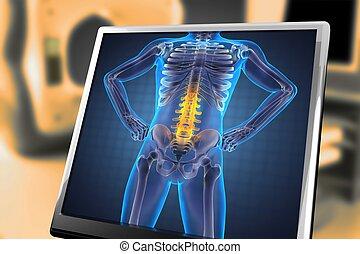 röntgenaufnahme, menschliche , überfliegen