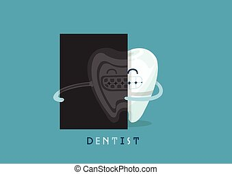 röntgenaufnahme, zahn