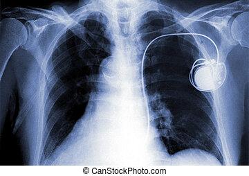 Röntgenaufnahmen
