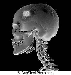 röntgenbild, führen verletzung, 3d
