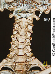 rückgrat, skelett, unter, c-t, röntgenbilder, menschliche , überfliegen