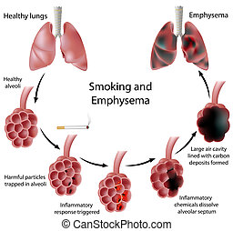 Rauchen und Emphysem, Eps 8.