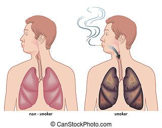 Rauchen.