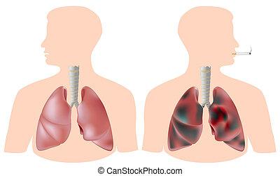 Raucher gegen gesunde Lunge