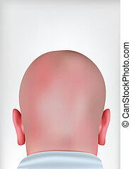 Realistischer Glatzkopf
