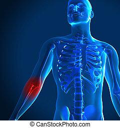 render, medizin, hervorgehoben, ellbogen, bild, schmerzhaft, 3d