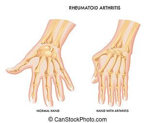Rheumatoide Arthritis.