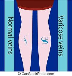 schöne , vein., varicose, normal, schlanke, weibliche , vektor, legs., vene