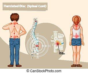 scheibe, vorgestanden abnormale körperöffnung, diagramm, ausstellung, menschliche