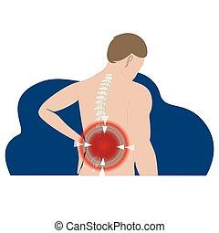 scheibe, zurück, oder, vorsprung, dehnen, spannung, schmerz, vorgestanden abnormale körperöffnung