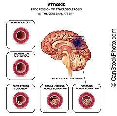 Schlag in die Gehirnarterie.