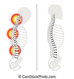 Schlippte Scheibe pro Rückfall Rückenschmerzen Wirbelsäule.