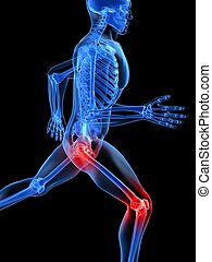 schmerzhaft, jointes