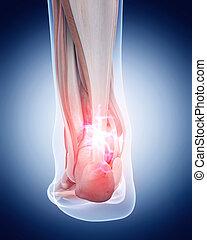 Schmerzhafte Achilles tendon.