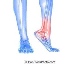 Schmerzhafte Knöchel-Illustration
