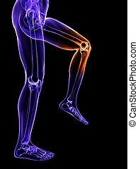 Schmerzhaftes Kniebild