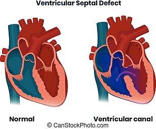 septal, anatomy., ventrikulär, herz, normal, angeboren, defekt, abbildung