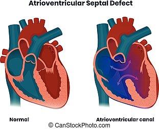 septal, anomalie, atrioventricular, herz, angeboren, abbildung, defect.