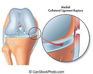 sicherheit, bruch, ligament, mittler