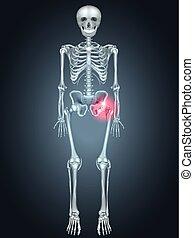 Skeleton mit Hüftschmerzen
