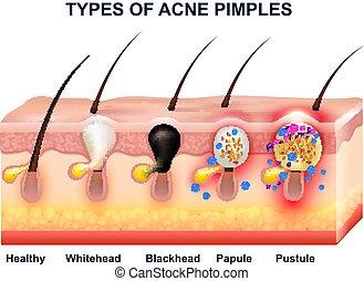 Skin Akne Anatomie Komposition.