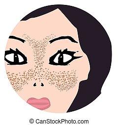 sommersprossen, face., fleck, pigmentation, haut, pigmentiert, nach, skin., treatment., vektor, abbildung, vorher