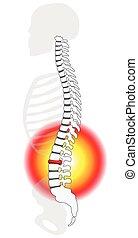Spinal-Disk-Prozidierung