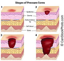 Stages ofdruck schmerzt, eps8