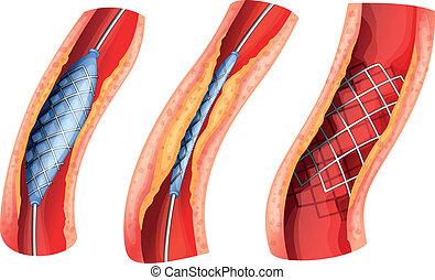 Stent öffnete die blockierte Arterie.