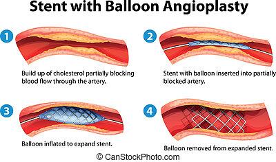 stent, angioplasty, verfahren