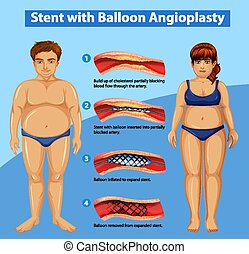 stent, ausstellung, angioplasty, diagramm, balloon