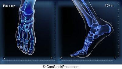 strahl, x, ansicht, oberseite, knochen, foot., mittler