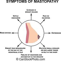 Symptome von Mastopathie. Weltweit Brustkrebs-Tag. Infographics. Vector Illustration auf isoliertem Hintergrund.